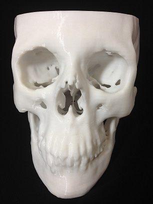 3D Printing  Skull